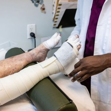lymphedema compression bandaging